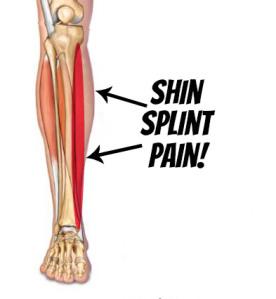 Best Running Shoes For Lower Leg Pain