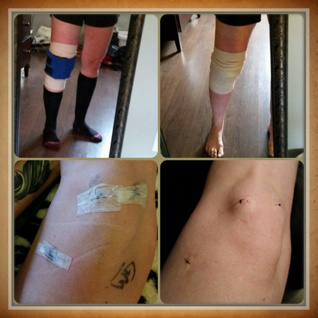 kristy-goss-knee-surgery